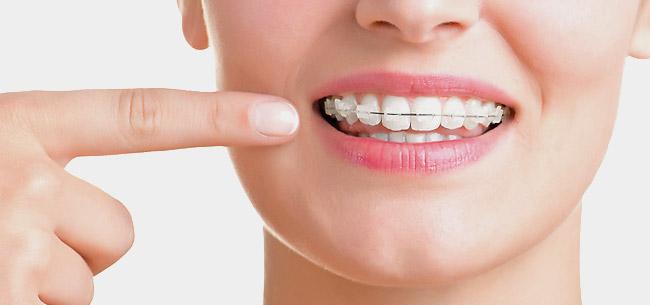Prix bague ceramique orthodontie